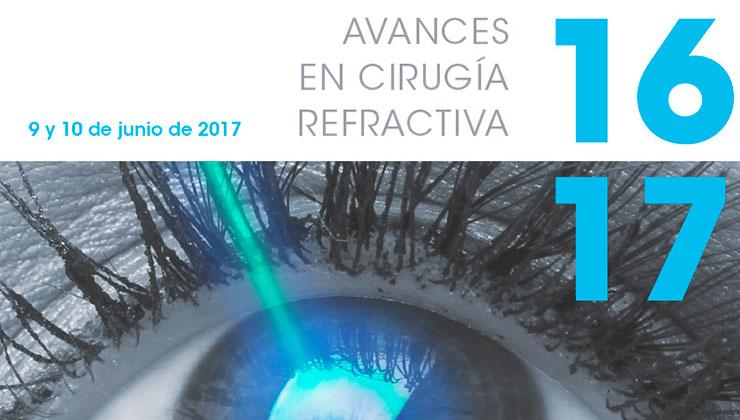 avances en cirugia refractiva
