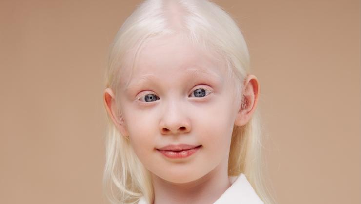 El origen del albinismo