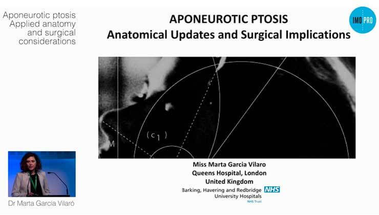 Aponeurotic ptosis. Applied anatomy and surgical considerations