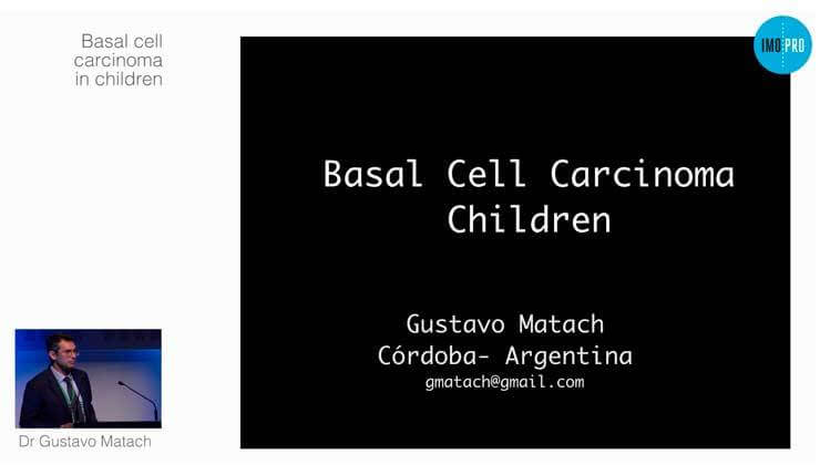Basal cell carcinoma in children