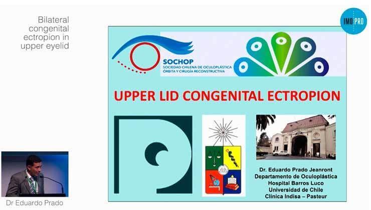 Bilateral congenital ectropion in upper eyelid
