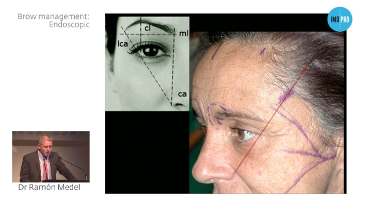 Brow management: endoscopic