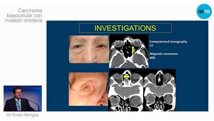 Carcinoma basocelular con invasión orbitaria