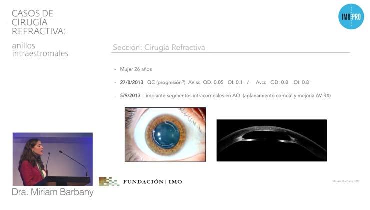 Casos de cirugía refractiva: anillos intraestromales