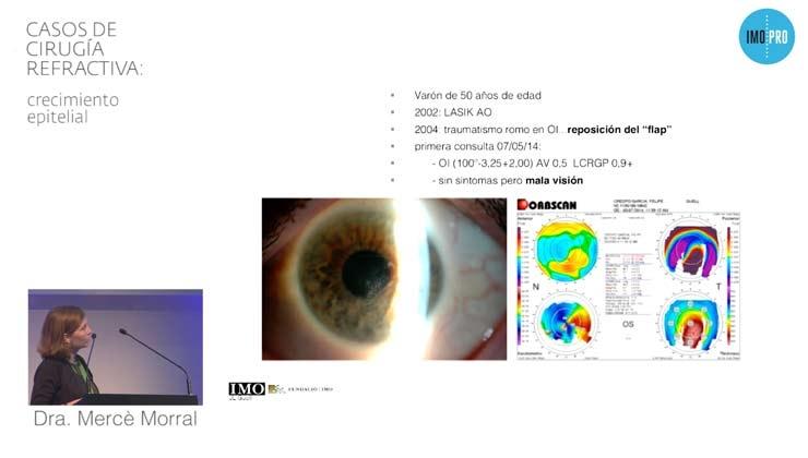 Casos de cirugía refractiva: crecimiento epitelial