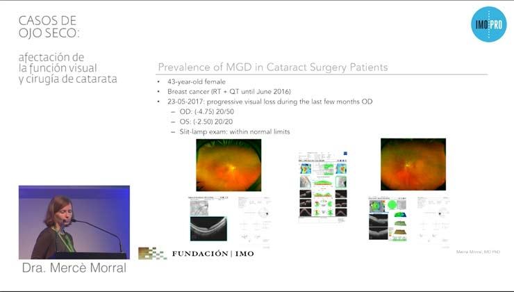 ojo seco: afectación de la función visual y cirugía de catarata