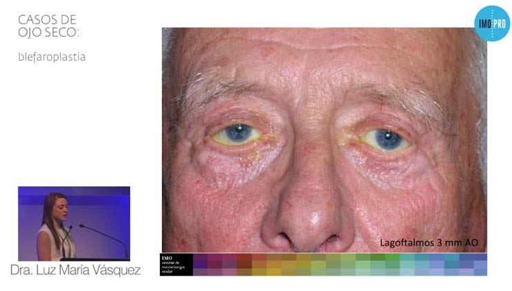 Casos de ojo seco: blefaroplastia