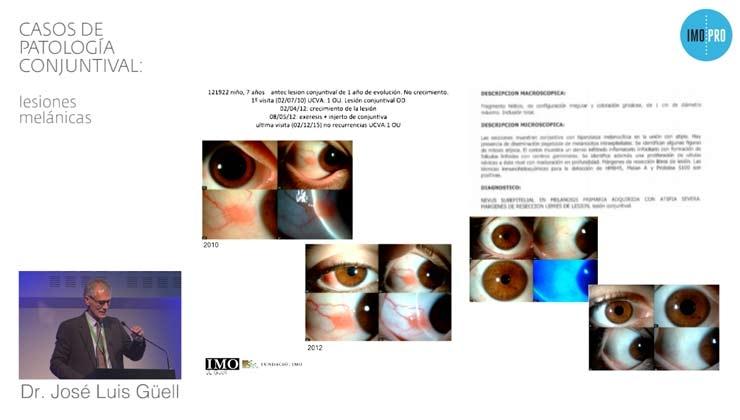 Casos de patología conjuntival: lesiones melánicas