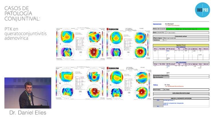Casos de patología conjuntival: PTK en queratoconjuntivitis adenovírica