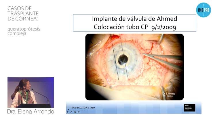 Casos de trasplante de córnea: queratoprótesis compleja