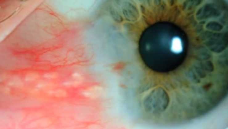 Pterygium surgery with Conjunctival autograft