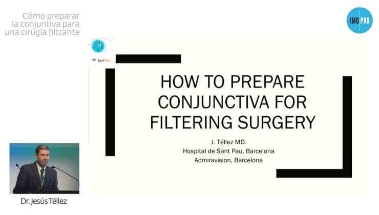 Cómo preparar la conjuntiva para una cirugía filtrante