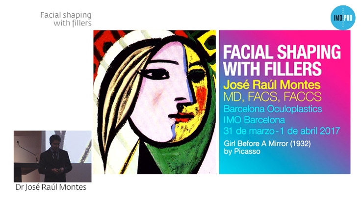 Facial shapping with fillers