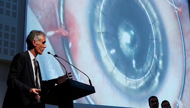 foto Dr. Güell - trasplante selectivo de córnea Esaso