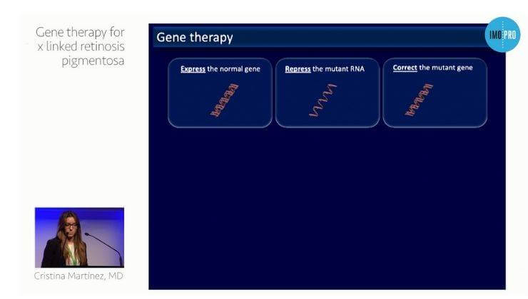 Gene therapy for x linked retinosis pigmentosa
