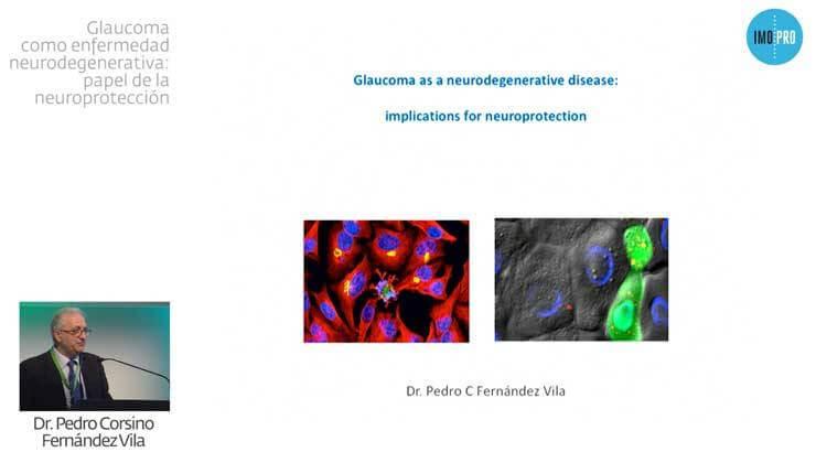 Glaucoma como enfermedad neurodegenerativa