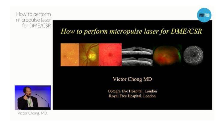 How toperform micropulse laser for DME/CSR