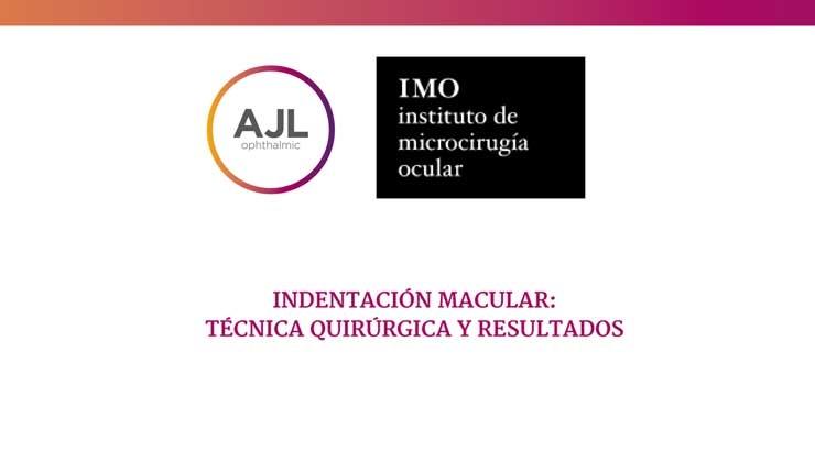 Indentación macular