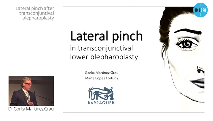 Lateral pinch after transconjuntival blepharoplasty