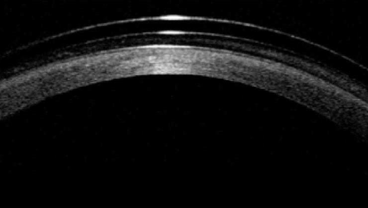 fotografía lente escleral