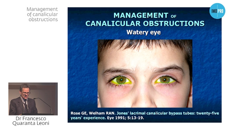 Management of canalicular obstructions
