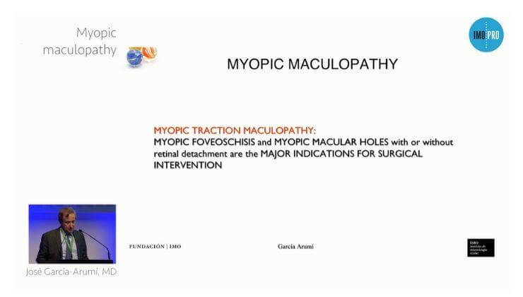 Myopic maculopathy