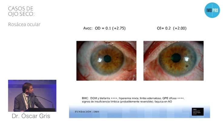 Casos de ojo seco: Rosácea Ocular