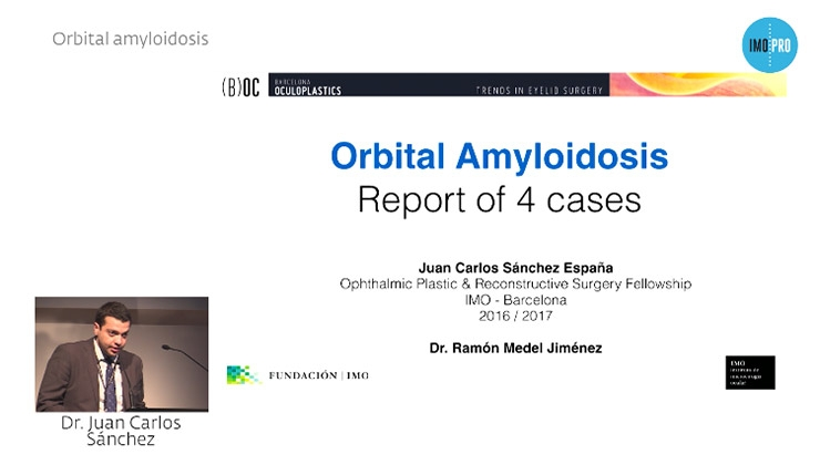 Orbital amyloidosis