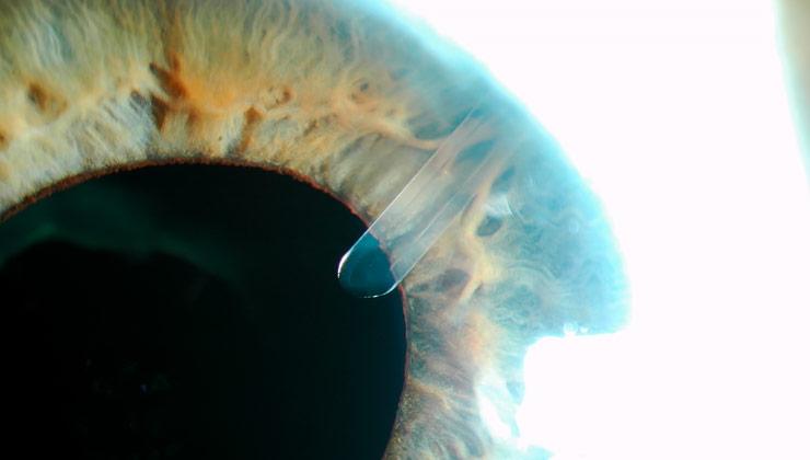 Máster en glaucoma