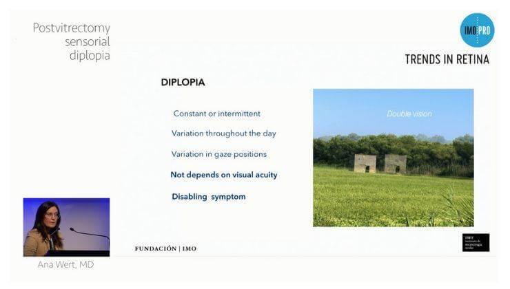 Postvitrectomy  diplopia