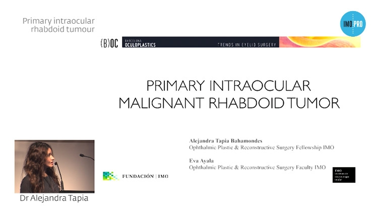 Primary intraocular rhabdoid tumour
