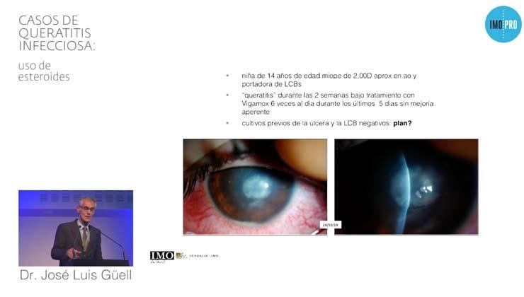 queratitis infecciosa: uso de esteroides