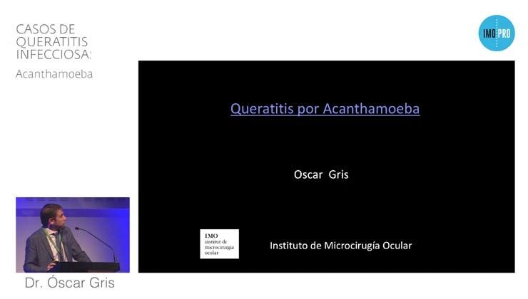 Casos de queratitis infecciosa: Acanthamoeba