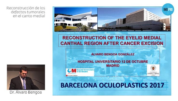 Reconstrucción de los defectos tumorales en el canto medial