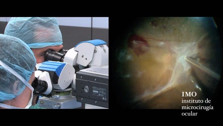 vitrectomía Dr. Corcóstegui