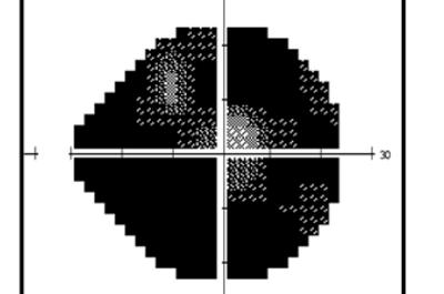 Nervio óptico con glaucoma