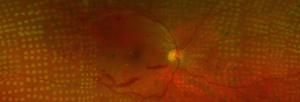 Retina post laser