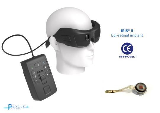 El IRIS®II utiliza una minicámara bioinspirada, instalada en unas gafas, que captura de manera continua los cambios en el campo visual mediante píxeles independientes en el tiempo